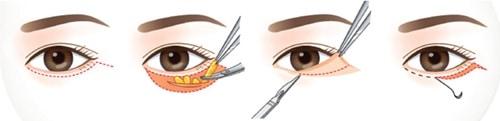 การผ่าตัดถุงใต้ตา
