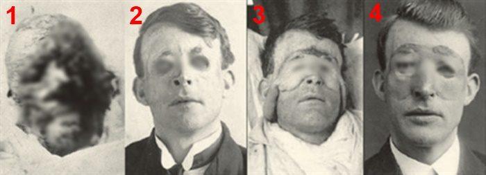 เปิดภาพคนแรกของการศัลยกรรม