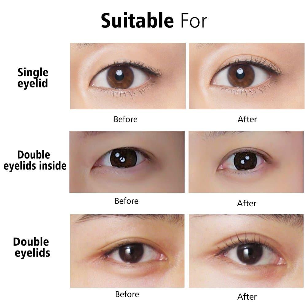 ตำแหน่งความเหมาะสมการผ่าตัดตาสองชั้น