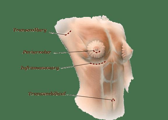 4 จุดผ่าตัดเสริมหน้าอก